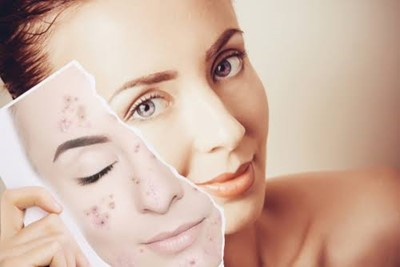 Dermapen- Everything You Need to Know About Micro-Needling